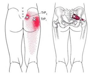 梨状筋症候群の説明