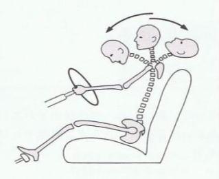 むち打ちによる首の過伸展、過屈曲