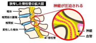 腰部脊柱管狭窄症の説明